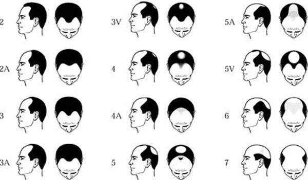 coupe de cheveux homme qui cale